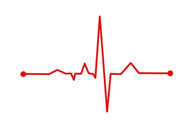 Afbeelding van hartslag