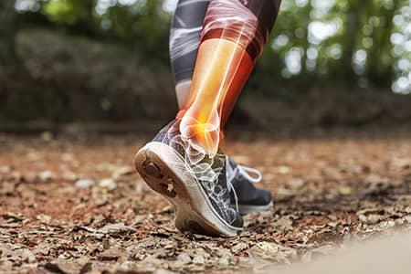 Afbeelding over hardlopen met spierpijn
